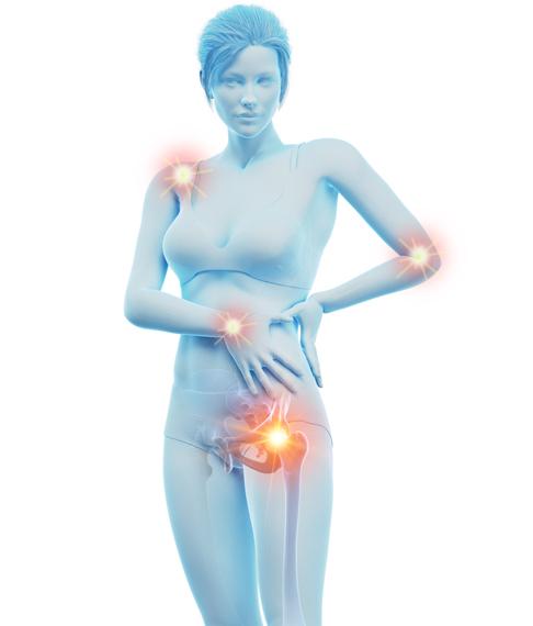 Centro Artrosi, trattamento riabilitativo non chirurgico dell'artrosi.
