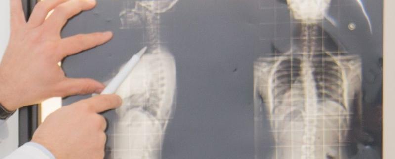malattia caratterizzata da lesioni degenerative a carico della cartilagine articolare. In base alla sede colpita, si può parlare di artrosi cervicale, lombare, di ginocchio, di anca
