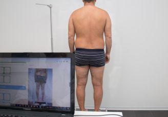 Trattamento riabilitativo non chirurgico delle PATOLOGIE DELLA SCHIENA